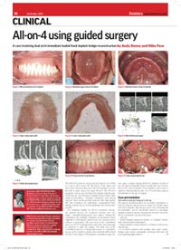 clinical-all-on-4-using-guided-surgery